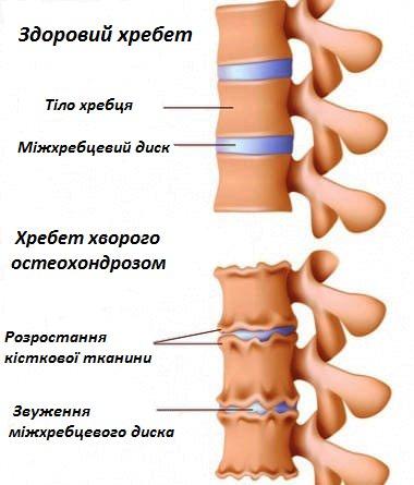 лечение артроза и артрита в санаториях украины